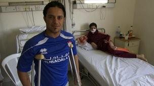 Hospital trata a los amputados  de la violencia en Arabia