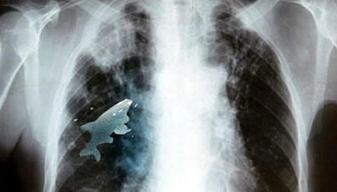 India: Hallan un pez vivo en el pulmón de un niño