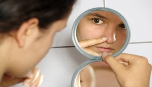 Conceptos erróneos sobre las causas del acné