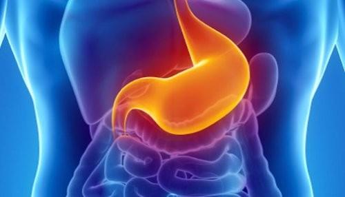 ¿Qué produce el cáncer gástrico?
