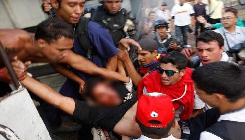 Venezuela desangrada