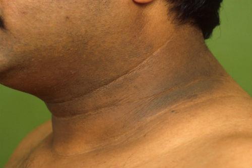 Manchas negras en el cuello, axilas y entrepiernas puede ser el inicio de la diabetes