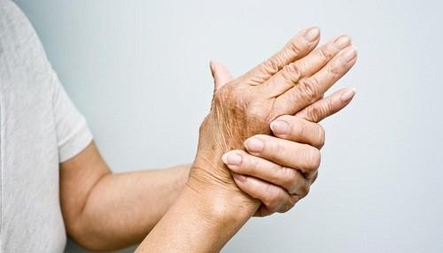 La artritis reumatoide, una dolorosa carga para las mujeres