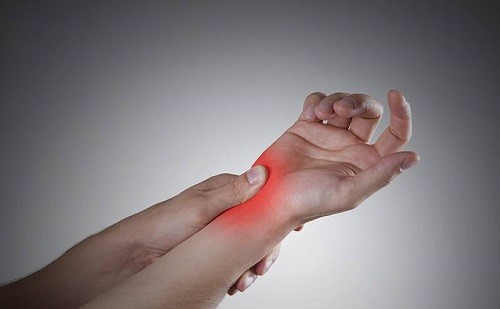 Artritis Reumatoide: sepa cuáles son las causas, tratamientos y cómo impacta esta enfermedad en los pacientes