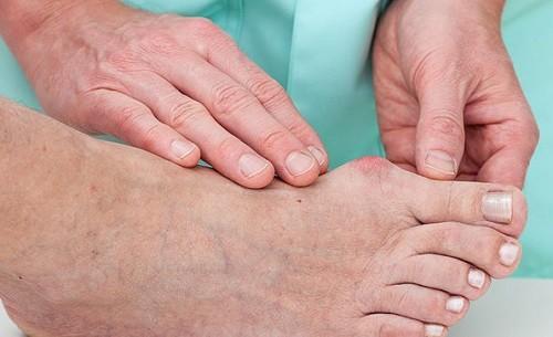 EsSalud advierte que las Úlceras por Presión son lesiones simples, pero pueden causar la muerte