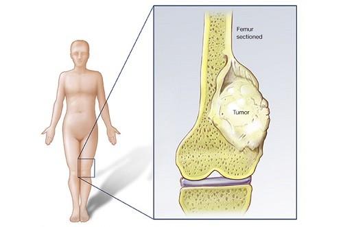 Cáncer de huesos afecta sin importar la edad