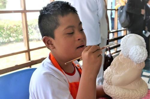EsSalud impulsa programa de rehabilitación para niños con Síndrome de Down