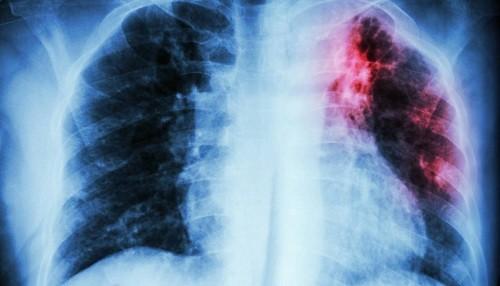 Fibrosis pulmonar idiopática es más frecuente en adultos a partir de los 50 años de edad