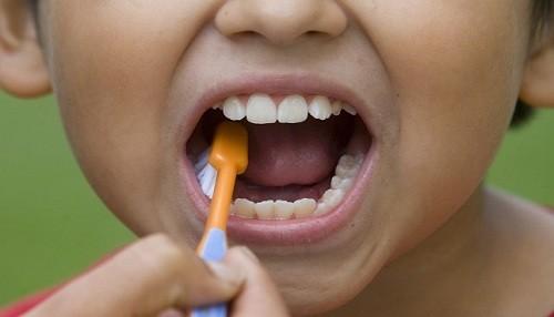 Establecimientos de salud brindarán diagnóstico y tratamiento contra la maloclusión dental infantil