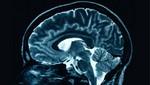 Encuentran gen que determina la inteligencia