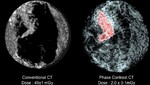 Nuevos escáneres 3D para detectar cáncer de mama