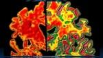 Prueba de Alzheimer detecta la enfermedad con décadas de anticipación