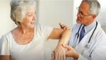 En Lima, 6 de cada 10 mujeres mayores de 50 años padecen osteoporosis