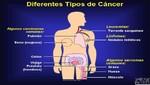 Para 2030 habrá 22 millones de enfermos de cáncer en el mundo