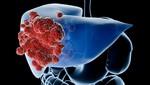 Crean un virus que podría acabar con el cáncer