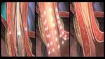 La terapia Stretta® para ERG recibe la mejor recomendación del nuevo lineamiento clínico de SAGES