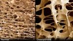 Osteoporosis no diagnosticadas a tiempo desencadenan fracturas en jóvenes y adultos