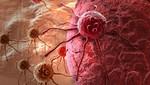 Organización Mundial de la Salud registra más de 66 mil nuevos casos de cáncer en Perú