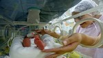 Alrededor de 100 mil bebés prematuros nacen al año en el Perú