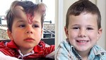 Niño con cuernos volvió a lucir un aspecto normal