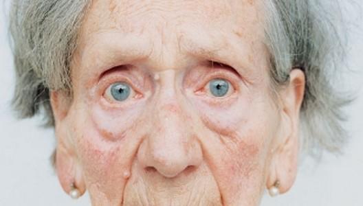Detección del Alzheimer a través de los ojos