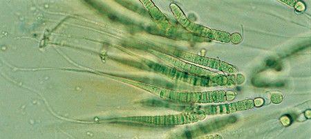 Cianobacterias esenciales en la historia y el futuro del planeta
