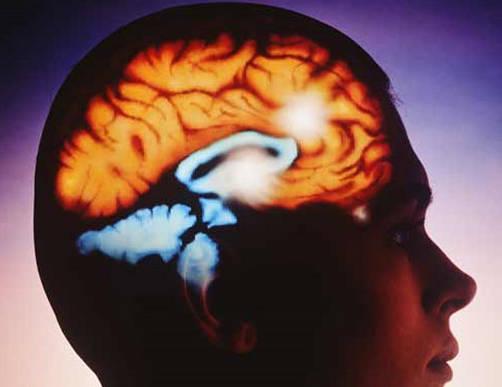 El cerebro y la comida basura